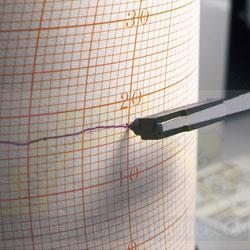 Đầu bút ghi nhiệt 7210-92 SATO