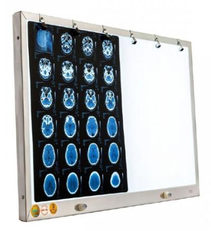 Đèn đọc 2 phim y khoa (CT, MRI, X-quang) Slim Vietnam